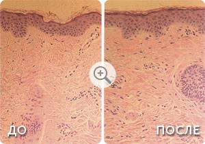 derma icon - Клинические результаты