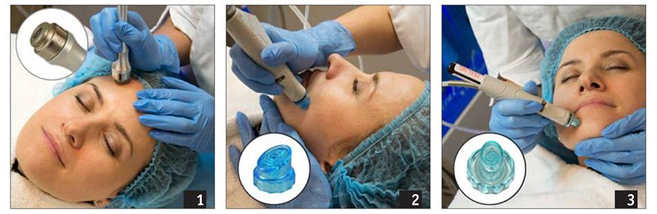 2015-6-kosmetolog-novii-metod-glubokoko-ochischeniya-hydrafacial-2