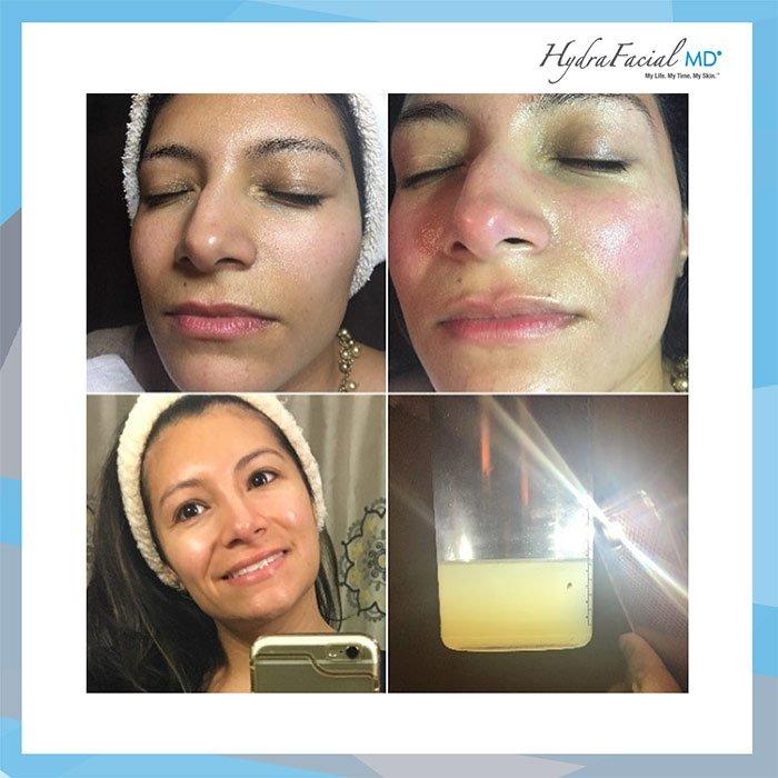vanessa - Процедура HydraFacial®  преобразит Вашу кожу! | Инстаграм-отзыв врача