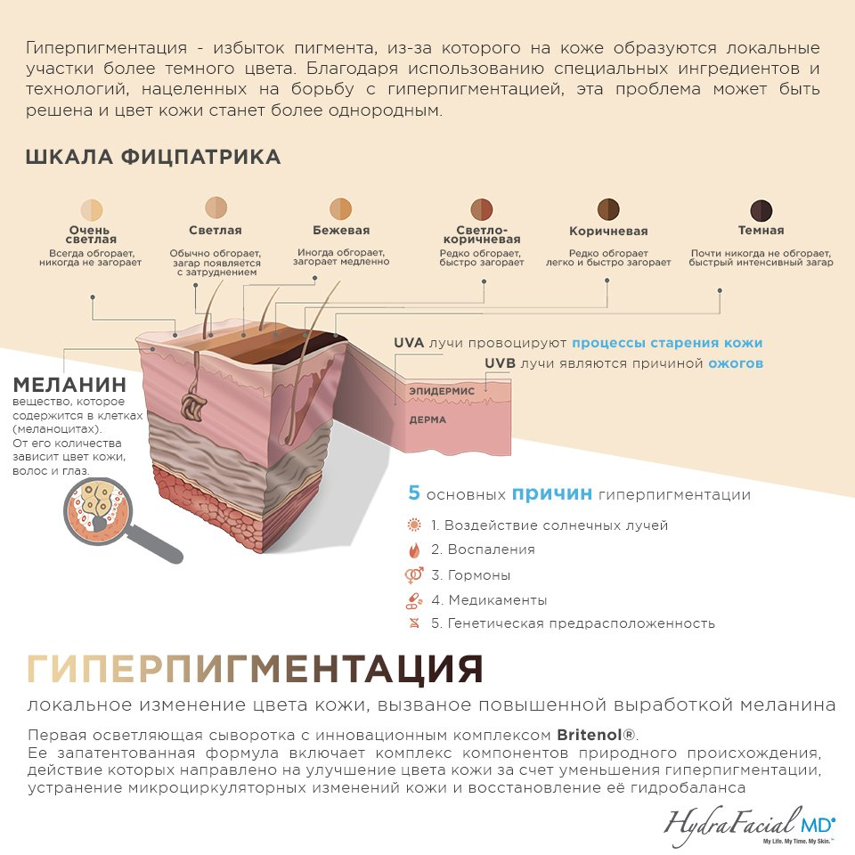 Гиперпигментация инфографика
