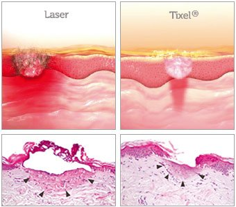 tixel vs laser 4 - Tixel® (Израиль): Аппарат фракционного омоложения без применения лазера