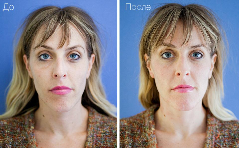 До и после HydraFacial