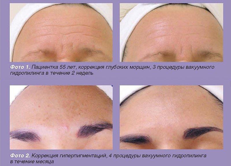 tsep expert3 - HydraFacial®: Клинические результаты | Д.м.н Владимир Цепколенко