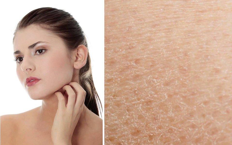 Что делать, если кожа лица сухая?