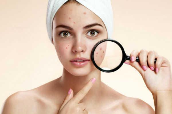 Что использовать до и после чистки лица: каким должен быть уход за кожей?