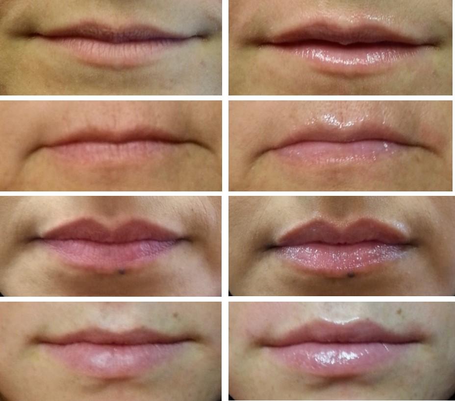 beforeafter lips 600x530 - Системы Perk™️ 2-в-1