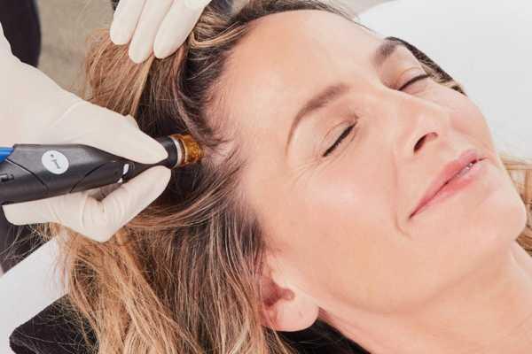 600x400 - Компания HydraFacial® объявляет о новинке — Keravive™ для кожи головы