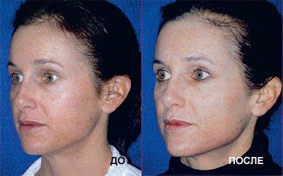 Результаты проведения процедур HydraFacial