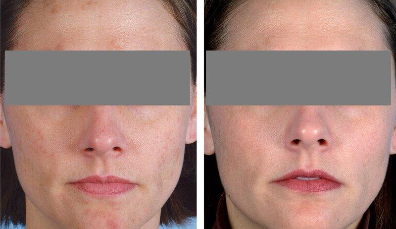 Фото до и после прцоедуры HydraFacial